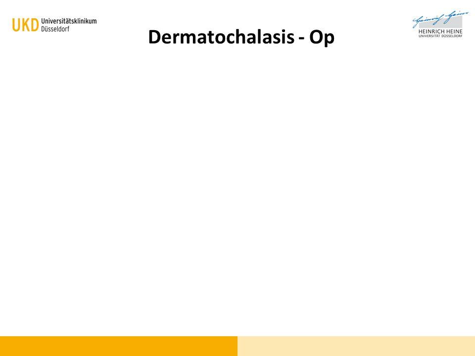 Dermatochalasis - Op