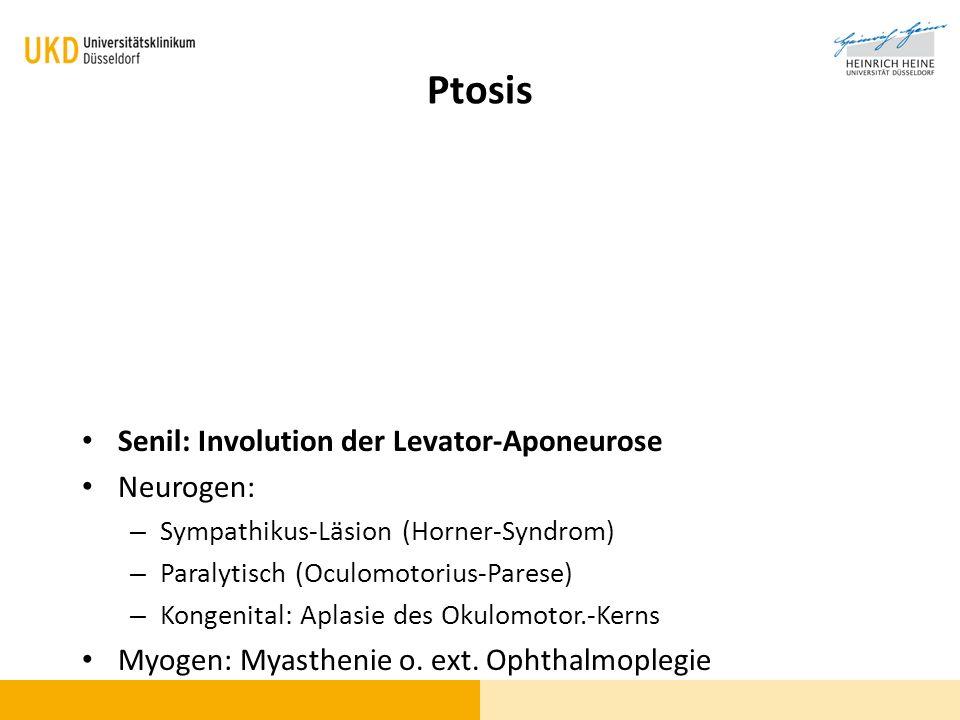 Ptosis Senil: Involution der Levator-Aponeurose Neurogen: – Sympathikus-Läsion (Horner-Syndrom) – Paralytisch (Oculomotorius-Parese) – Kongenital: Apl