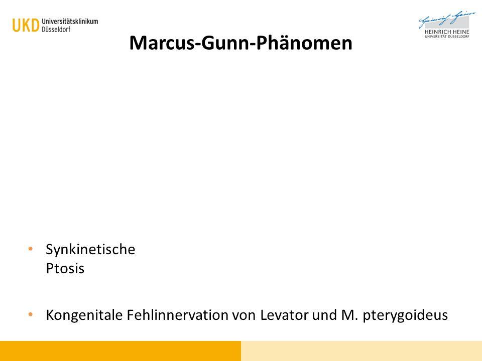 Marcus-Gunn-Phänomen Synkinetische Ptosis Kongenitale Fehlinnervation von Levator und M. pterygoideus