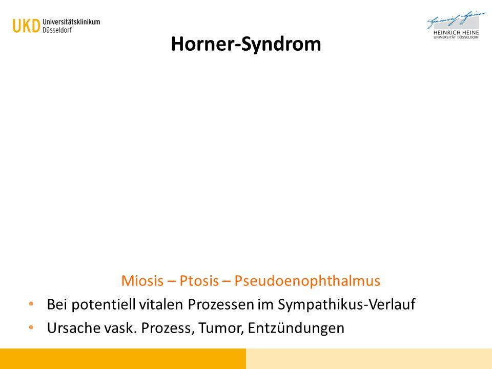 Horner-Syndrom Miosis – Ptosis – Pseudoenophthalmus Bei potentiell vitalen Prozessen im Sympathikus-Verlauf Ursache vask. Prozess, Tumor, Entzündungen
