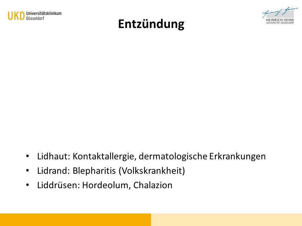 Lidhaut: Kontaktallergie, dermatologische Erkrankungen Lidrand: Blepharitis (Volkskrankheit) Liddrüsen: Hordeolum, Chalazion