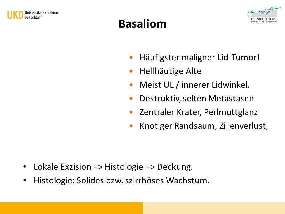 Basaliom Lokale Exzision => Histologie => Deckung. Histologie: Solides bzw. szirrhöses Wachstum. Häufigster maligner Lid-Tumor! Hellhäutige Alte Meist