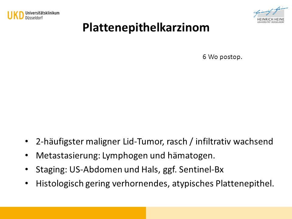 Plattenepithelkarzinom 2-häufigster maligner Lid-Tumor, rasch / infiltrativ wachsend Metastasierung: Lymphogen und hämatogen. Staging: US-Abdomen und