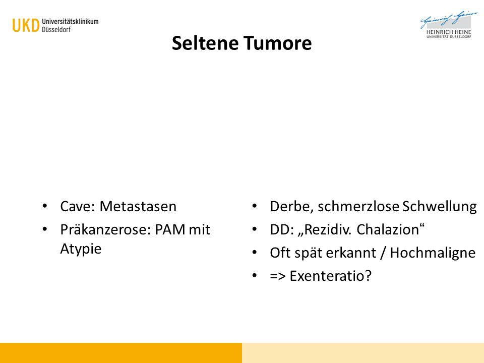 Seltene Tumore Cave: Metastasen Präkanzerose: PAM mit Atypie Derbe, schmerzlose Schwellung DD: Rezidiv. Chalazion Oft spät erkannt / Hochmaligne => Ex