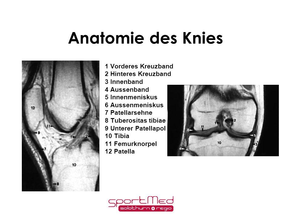 Anatomie:Vorderes Kreuzband (ACL)