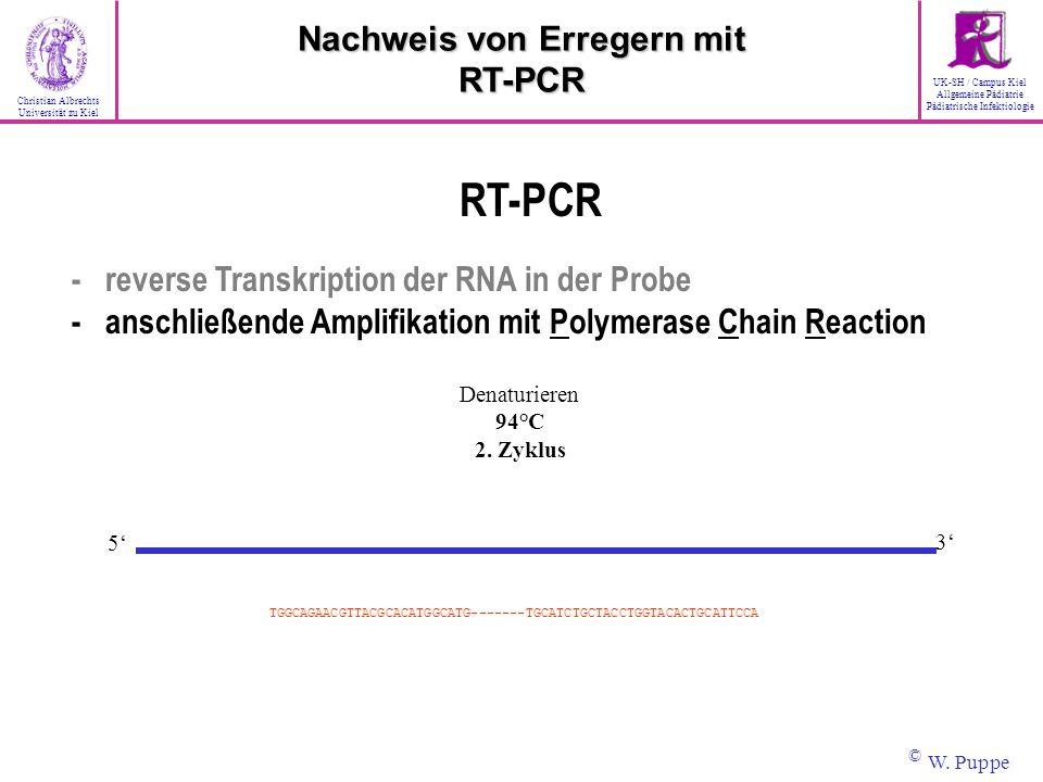 Denaturieren 94°C 2. Zyklus 3 5 TGGCAGAACGTTACGCACATGGCATG-------TGCATCTGCTACCTGGTACACTGCATTCCA RT-PCR - reverse Transkription der RNA in der Probe -