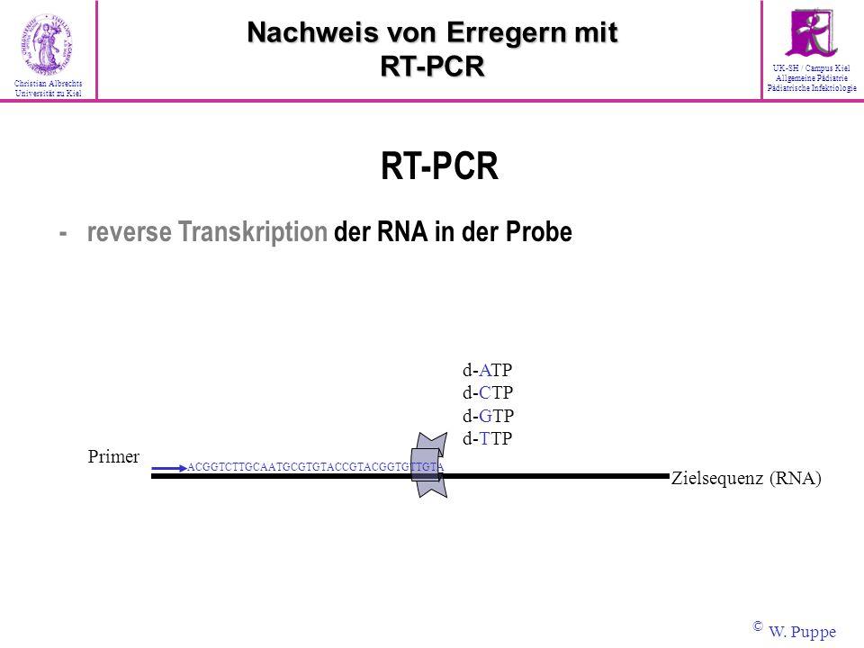 Primer d-ATP d-CTP d-GTP d-TTP ACGGTCTTGCAATGCGTGTACCGTACGGTGTTGTA Zielsequenz (RNA) RT-PCR - reverse Transkription der RNA in der Probe Nachweis von