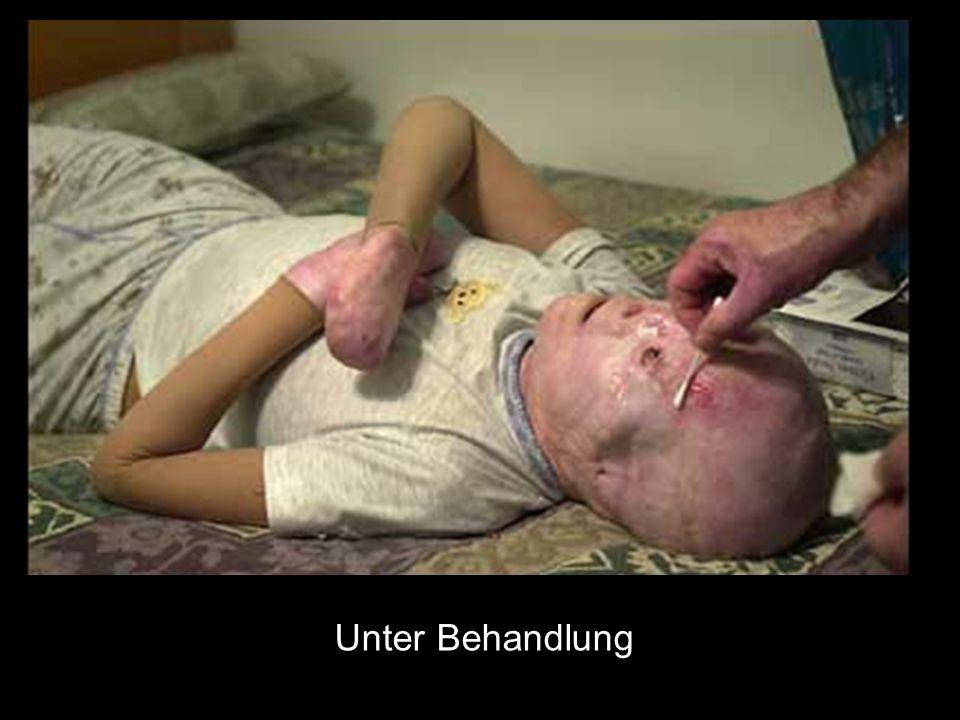 Unter Behandlung