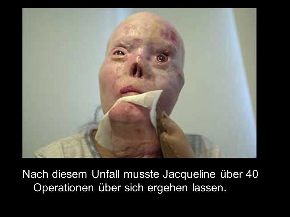 Nach diesem Unfall musste Jacqueline über 40 Operationen über sich ergehen lassen.