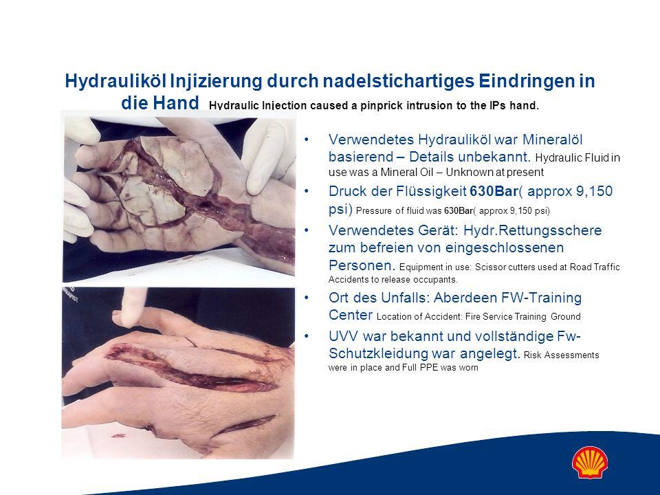 Hydrauliköl Injizierung durch nadelstichartiges Eindringen in die Hand Hydraulic Injection caused a pinprick intrusion to the IPs hand. Verwendetes Hy