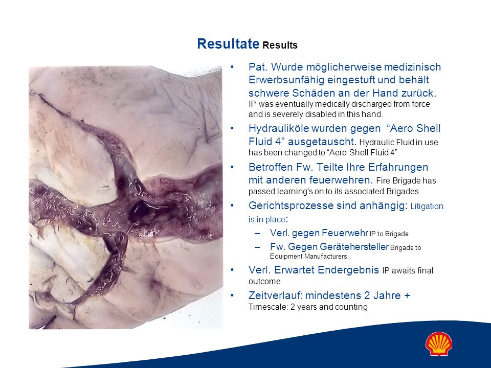 Resultate Results Pat. Wurde möglicherweise medizinisch Erwerbsunfähig eingestuft und behält schwere Schäden an der Hand zurück. IP was eventually med