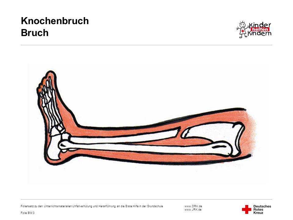 www.DRK.de www.JRK.de Knochenbruch Bruch Foliensatz zu den Unterrichtsmaterialien Unfallverhütung und Heranführung an die Erste Hilfe in der Grundschu