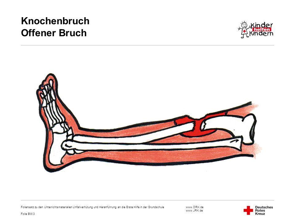 www.DRK.de www.JRK.de Knochenbruch Offener Bruch Foliensatz zu den Unterrichtsmaterialien Unfallverhütung und Heranführung an die Erste Hilfe in der G