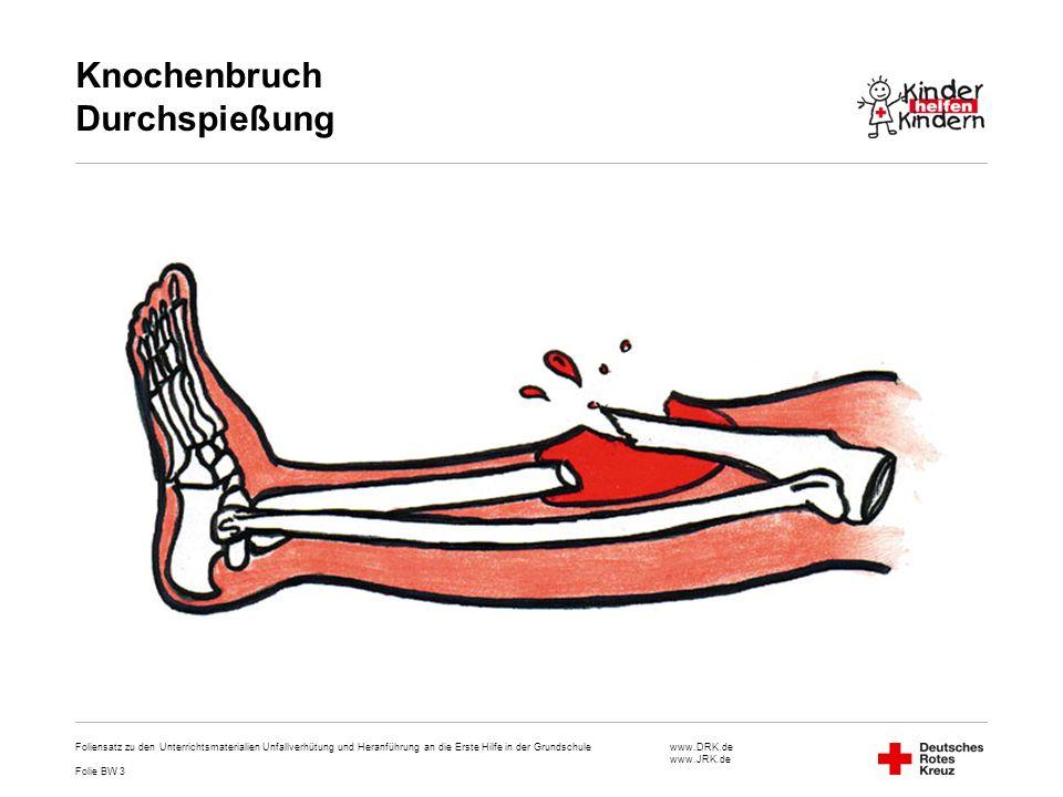 www.DRK.de www.JRK.de Knochenbruch Durchspießung Foliensatz zu den Unterrichtsmaterialien Unfallverhütung und Heranführung an die Erste Hilfe in der G