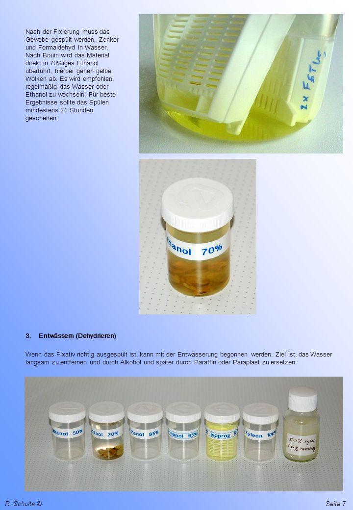 R. Schulte ©Seite 7 Nach der Fixierung muss das Gewebe gespült werden, Zenker und Formaldehyd in Wasser. Nach Bouin wird das Material direkt in 70%ige