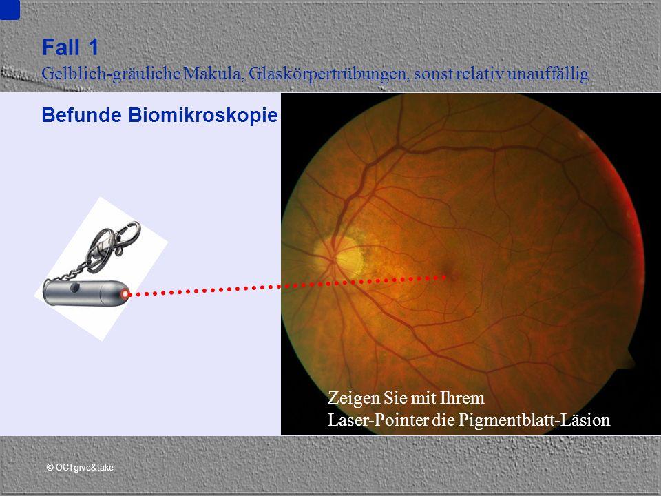 © OCTgive&take Fall 1 Gelblich-gräuliche Makula, Glaskörpertrübungen, sonst relativ unauffällig Befunde Biomikroskopie Zeigen Sie mit Ihrem Laser-Poin