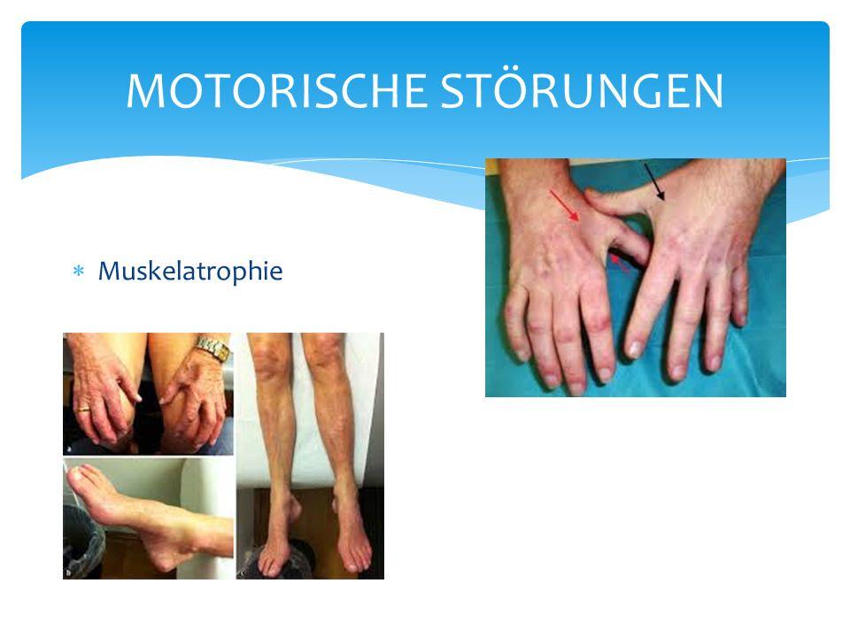 MOTORISCHE STÖRUNGEN Muskelatrophie