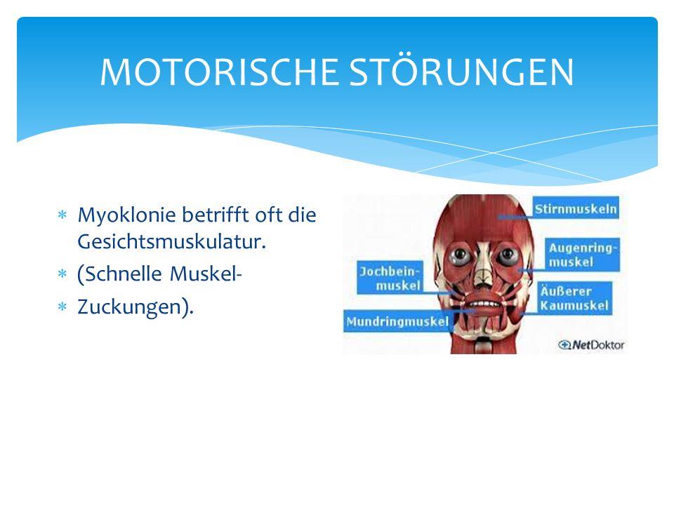 MOTORISCHE STÖRUNGEN Myoklonie betrifft oft die Gesichtsmuskulatur. (Schnelle Muskel- Zuckungen).