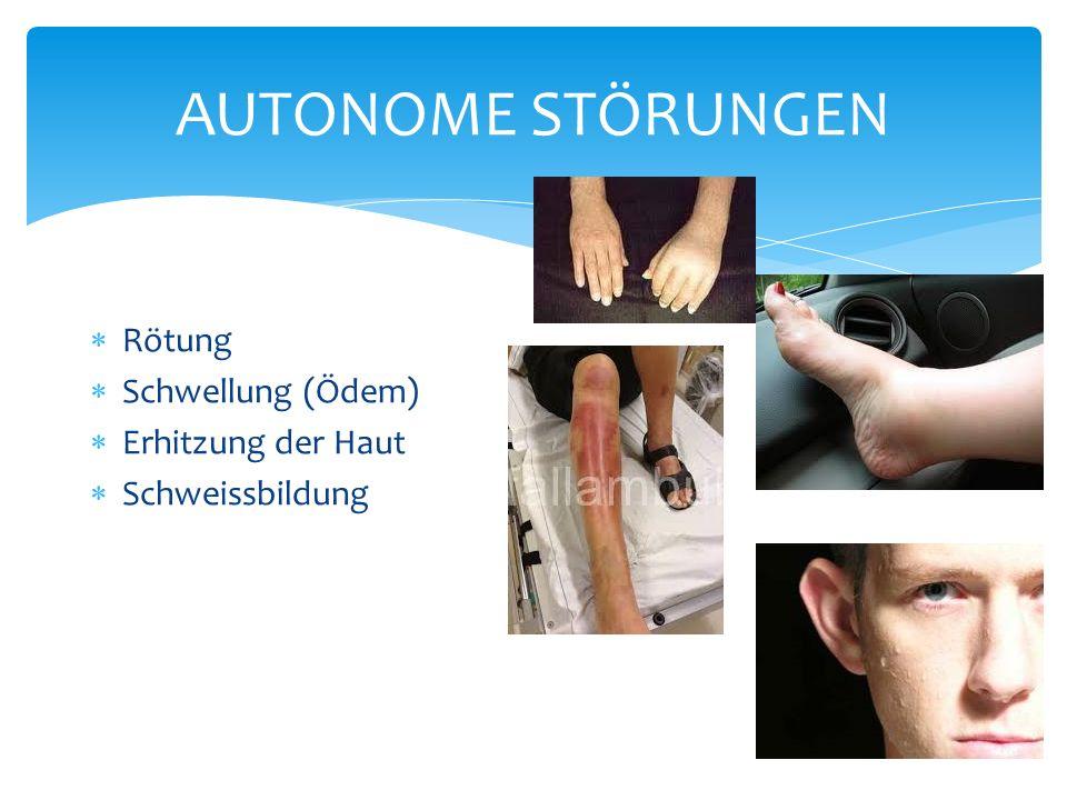 AUTONOME STÖRUNGEN Rötung Schwellung (Ödem) Erhitzung der Haut Schweissbildung