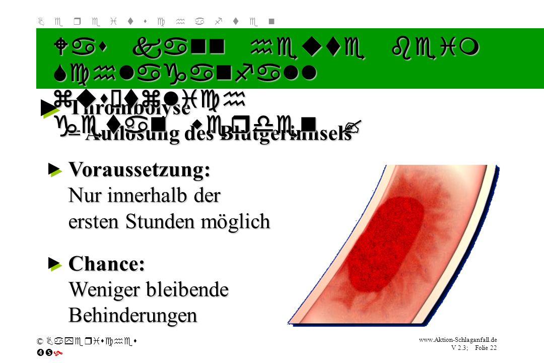 Klicken Sie, um das Titelformat zu bearbeiten B e r e i t s c h a f t e n www.Aktion-Schlaganfall.de V 2.3; Folie 22 © Bayerisches Thrombolyse = Auflö