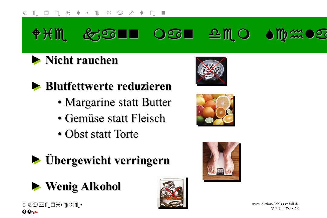 Klicken Sie, um das Titelformat zu bearbeiten B e r e i t s c h a f t e n www.Aktion-Schlaganfall.de V 2.3; Folie 26 © Bayerisches Nicht rauchen Blutf