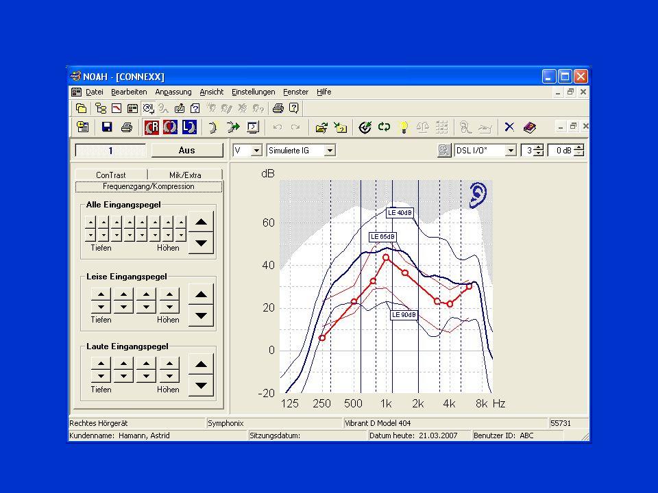 Verfahren zur Anpassung und Kontrolle nach aufsteigender Hörbahn Subjektive Einschätzung des Versorgungserfolges (Frageinventare zum sozialen Hörvermögen) Sprachaudiometrie im Störschall Sprachaudiometrie in Ruhe Lautheitsskalierung Bestimmung von MCL und UCL Hörschwellenbestimmung (Aufblähkurve) OAE, BERA Stapediusreflexmessung Sondenmikrofonmessung ------------------------------------------ Kupplermessung