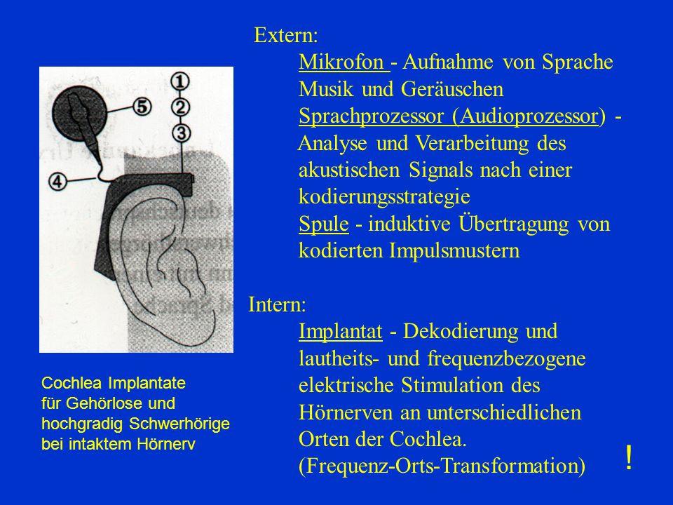 Extern: Mikrofon - Aufnahme von Sprache Musik und Geräuschen Sprachprozessor (Audioprozessor) - Analyse und Verarbeitung des akustischen Signals nach