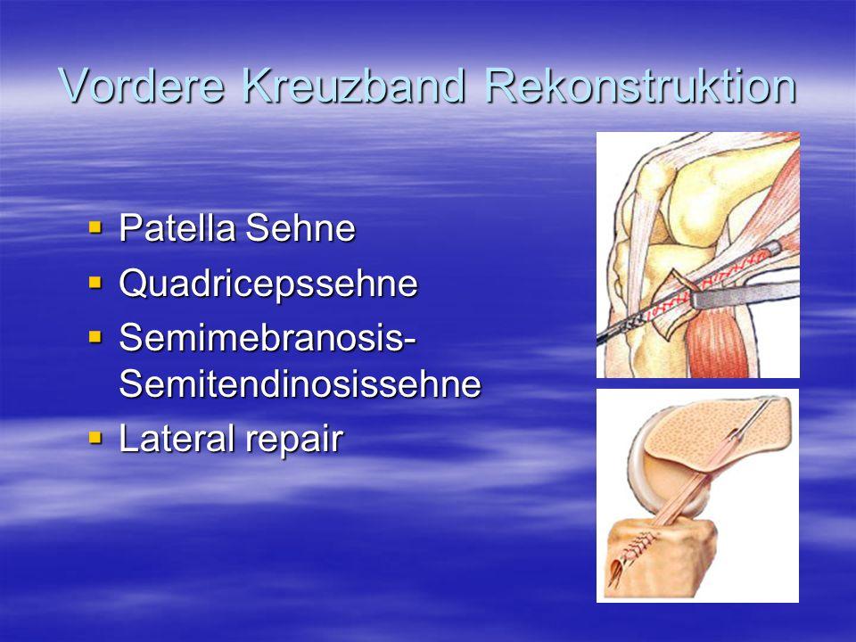 Vordere Kreuzband Rekonstruktion Patella Sehne Patella Sehne Quadricepssehne Quadricepssehne Semimebranosis- Semitendinosissehne Semimebranosis- Semit