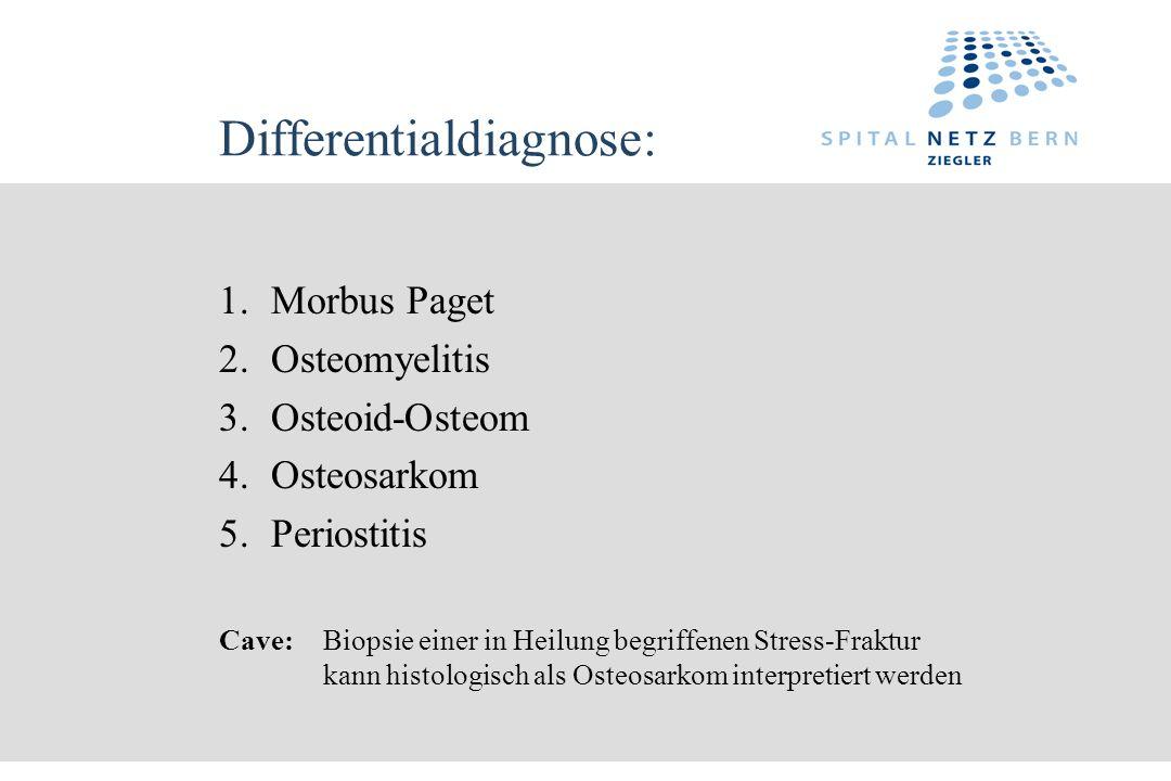 Differentialdiagnose: 1.Morbus Paget 2.Osteomyelitis 3.Osteoid-Osteom 4.Osteosarkom 5.Periostitis Cave: Biopsie einer in Heilung begriffenen Stress-Fr