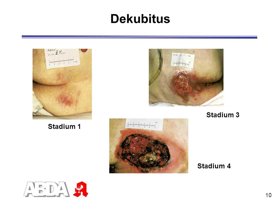 10 Dekubitus Stadium 1 Stadium 3 Stadium 4