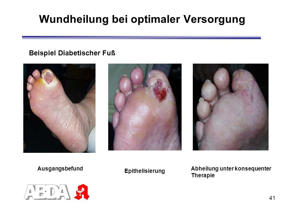41 Wundheilung bei optimaler Versorgung Ausgangsbefund Epithelisierung Abheilung unter konsequenter Therapie Beispiel Diabetischer Fuß