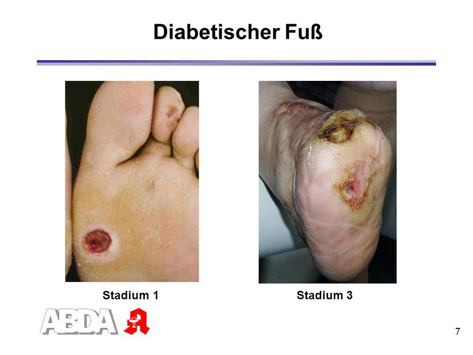 8 Diabetischer Fuß - Ursachen diabetische Neuropathie mit Verlust der Schmerzempfindung Missachtung von Verletzungen Infizierung und Vergrößerung der Wunde