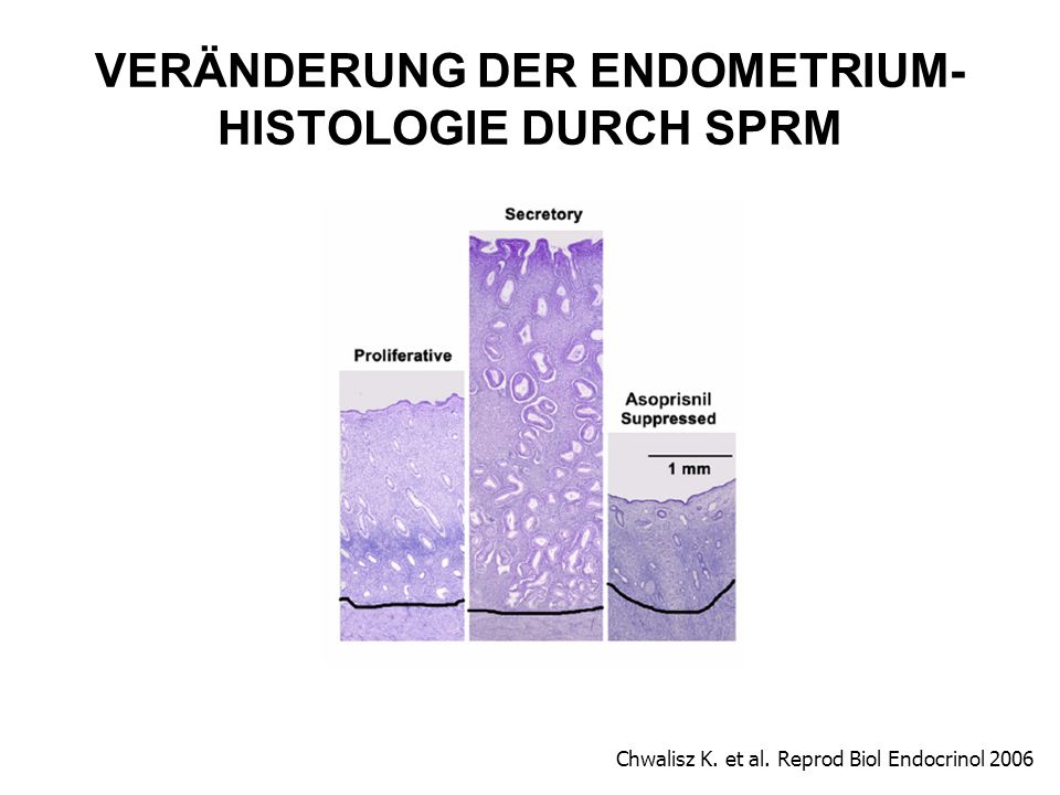 VERÄNDERUNG DER ENDOMETRIUM- HISTOLOGIE DURCH SPRM Chwalisz K. et al. Reprod Biol Endocrinol 2006