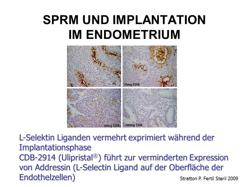 SPRM UND IMPLANTATION IM ENDOMETRIUM Stratton P. Fertil Steril 2009 L-Selektin Liganden vermehrt exprimiert während der Implantationsphase CDB-2914 (U