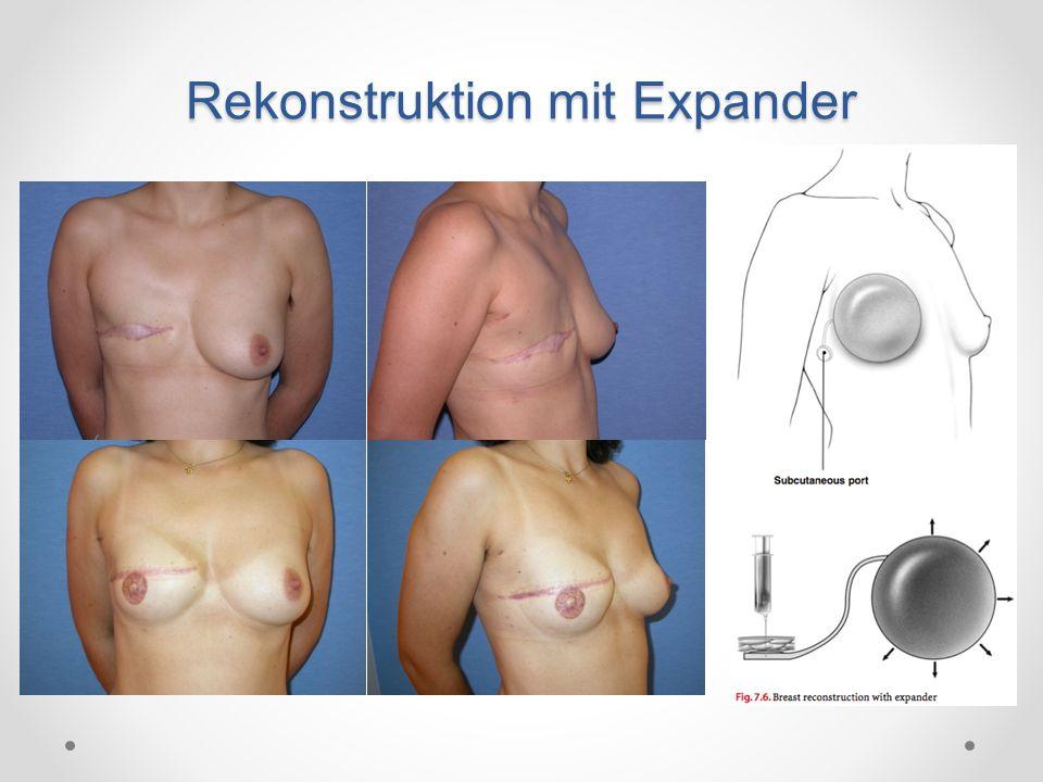 Strattice ist eine azelluläre humane dermale Matrix o Verwendung grösserer Implantate möglich o Nachteile überwiegen: Serombildung, Infektion, Preis Strattice