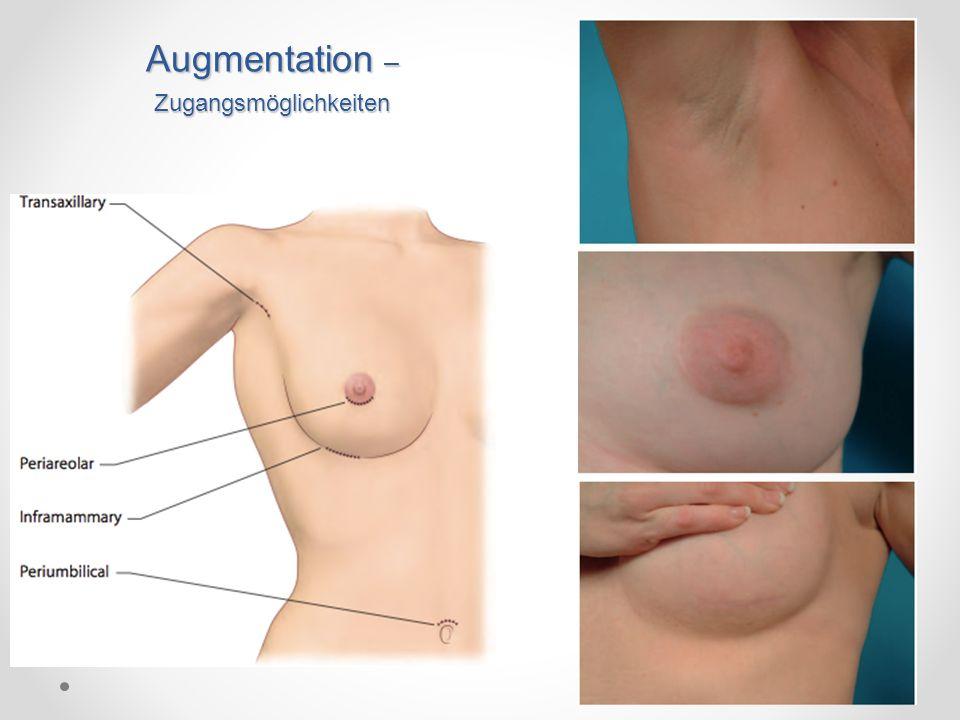Lage des Implantats natürl.Form Die Brust behält ihre natürl.