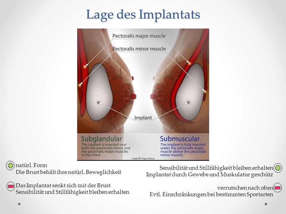 Lage des Implantats