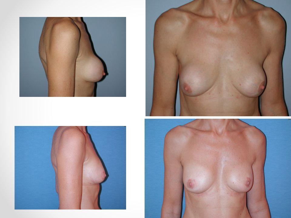 Subpectoral – glatt-rundes Implantat Durch Kontraktion d.