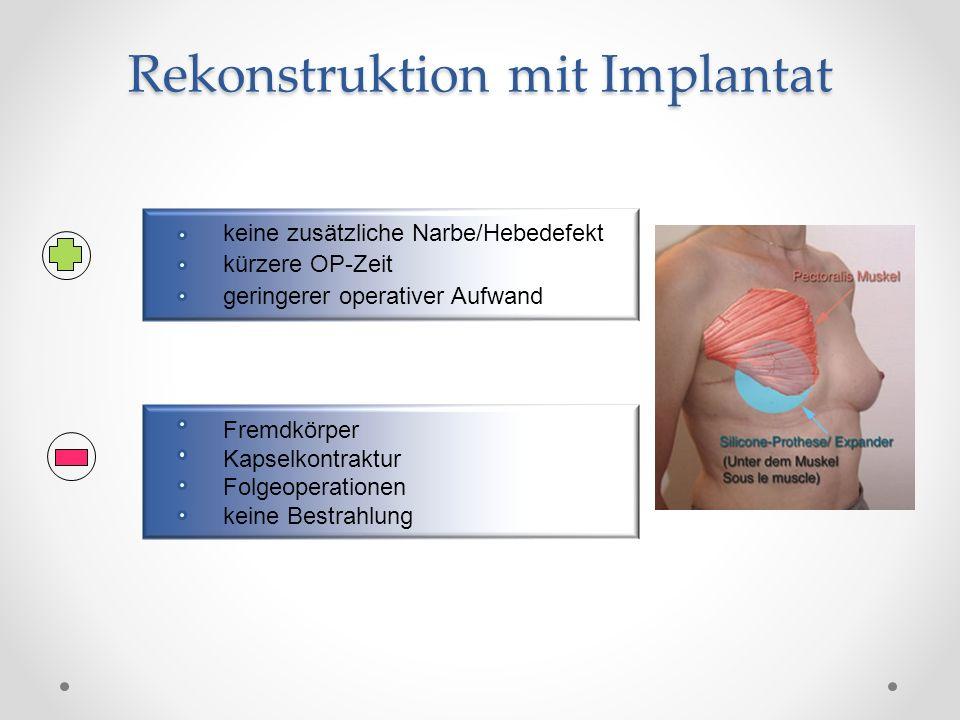 Doppellumen Definitives Implantat Externes Ventil Meist Ventilentfernung und Neupositionierung in Allgemeinnarkose NaCl Silikongel Externes Ventil zum Füllen Rekonstruktion mit Expander