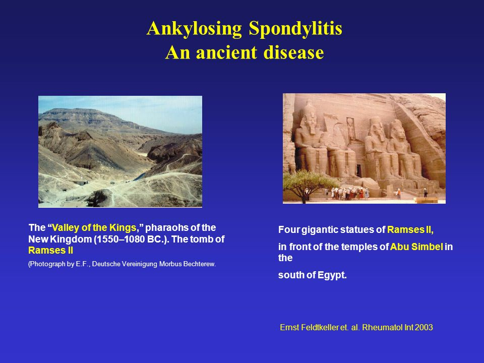 The Valley of the Kings, pharaohs of the New Kingdom (1550–1080 BC.).