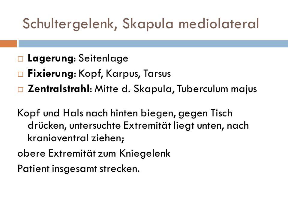 Schultergelenk, Skapula mediolateral Lagerung: Seitenlage Fixierung: Kopf, Karpus, Tarsus Zentralstrahl: Mitte d. Skapula, Tuberculum majus Kopf und H