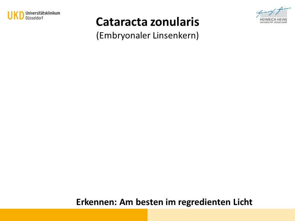 Cataracta zonularis (Embryonaler Linsenkern) Erkennen: Am besten im regredienten Licht
