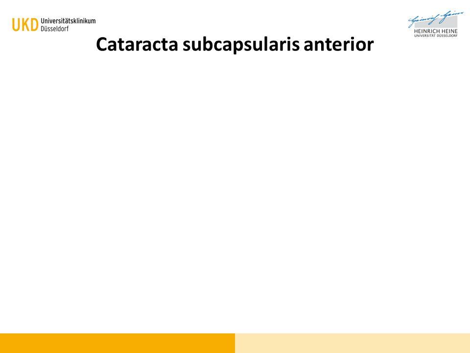 Cataracta subcapsularis anterior