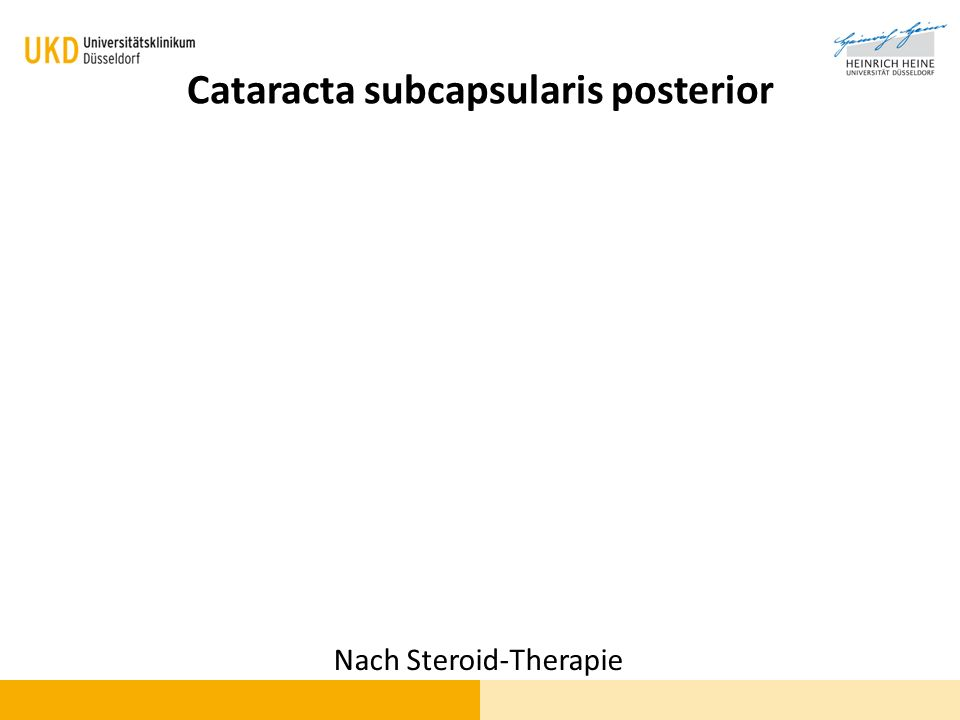 Cataracta subcapsularis posterior Nach Steroid-Therapie