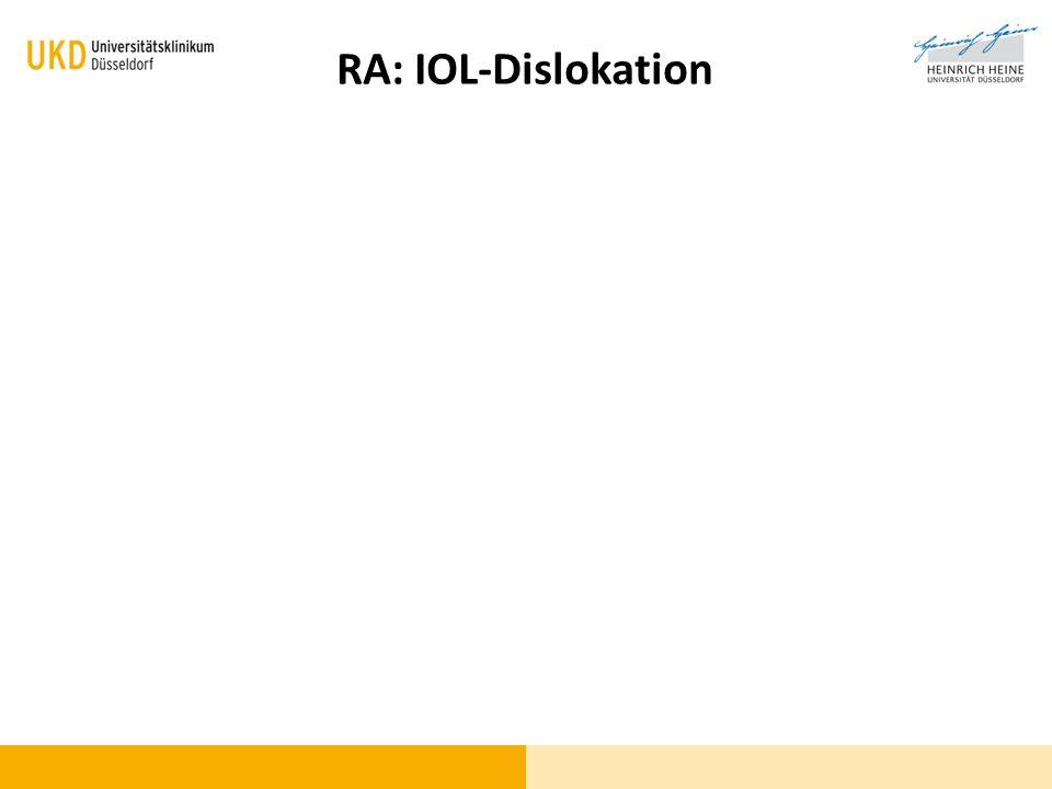 Wo / Was ist das Problem? RA: IOL-Dislokation