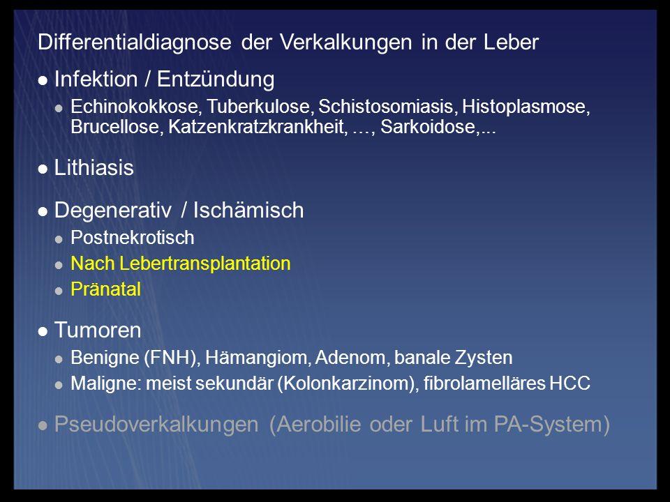 Infektion / Entzündung Echinokokkose, Tuberkulose, Schistosomiasis, Histoplasmose, Brucellose, Katzenkratzkrankheit, …, Sarkoidose,... Lithiasis Degen