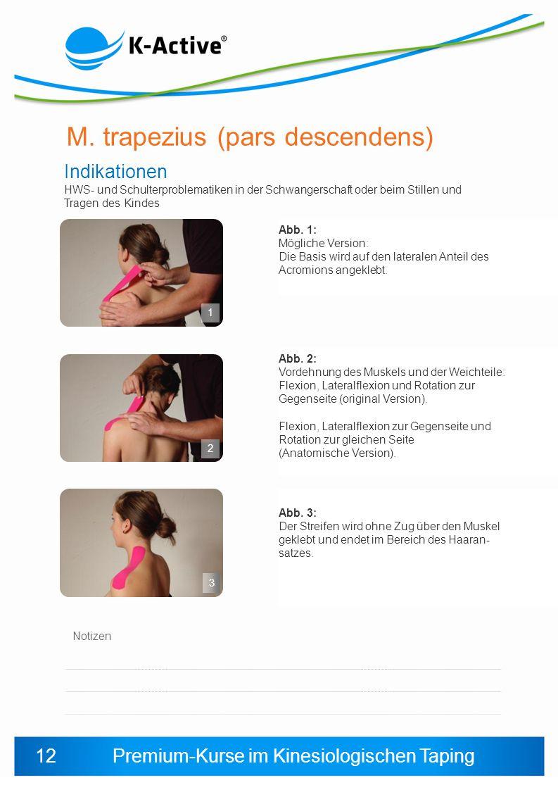 Premium-Kurse im Kinesiologischen Taping Notizen Abb. 3: Der Streifen wird ohne Zug über den Muskel geklebt und endet im Bereich des Haaran- satzes. A