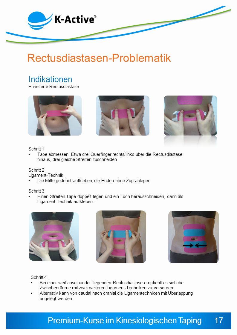 Premium-Kurse im Kinesiologischen Taping Rectusdiastasen-Problematik Indikationen Erweiterte Rectusdiastase Schritt 1 Tape abmessen: Etwa drei Querfin
