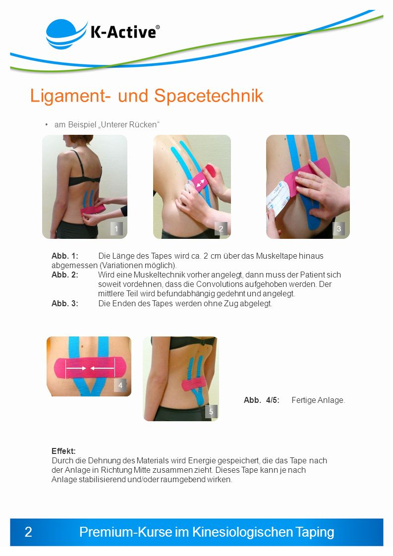 Premium-Kurse im Kinesiologischen Taping am Beispiel Unterer Rücken 1 23 5 Abb. 4/5:Fertige Anlage. Ligament- und Spacetechnik 4 Abb. 1: Die Länge des