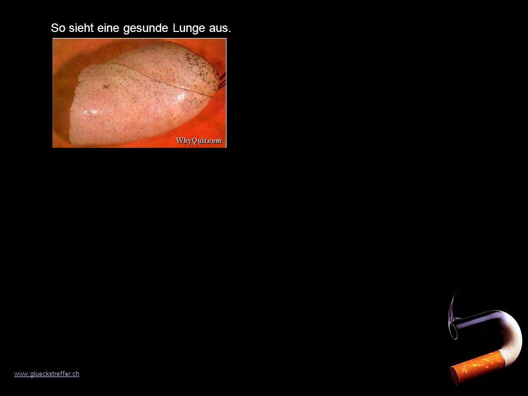 So sieht eine gesunde Lunge aus. www.glueckstreffer.ch